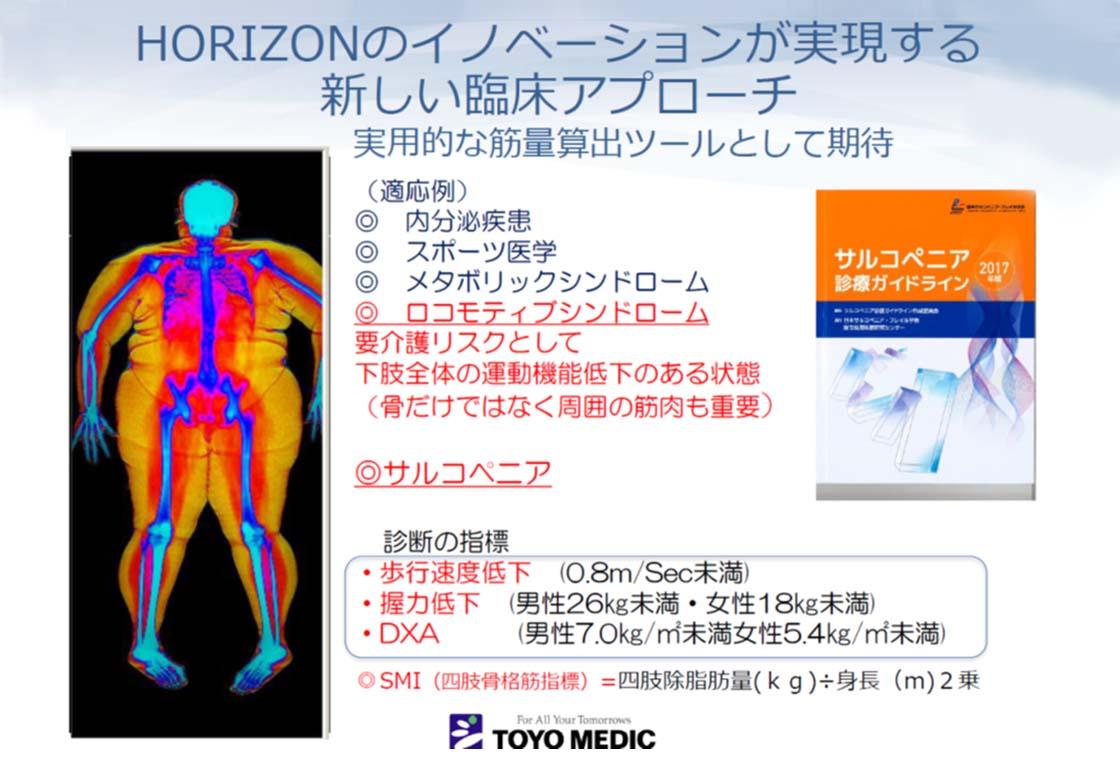骨密度測定のスライド